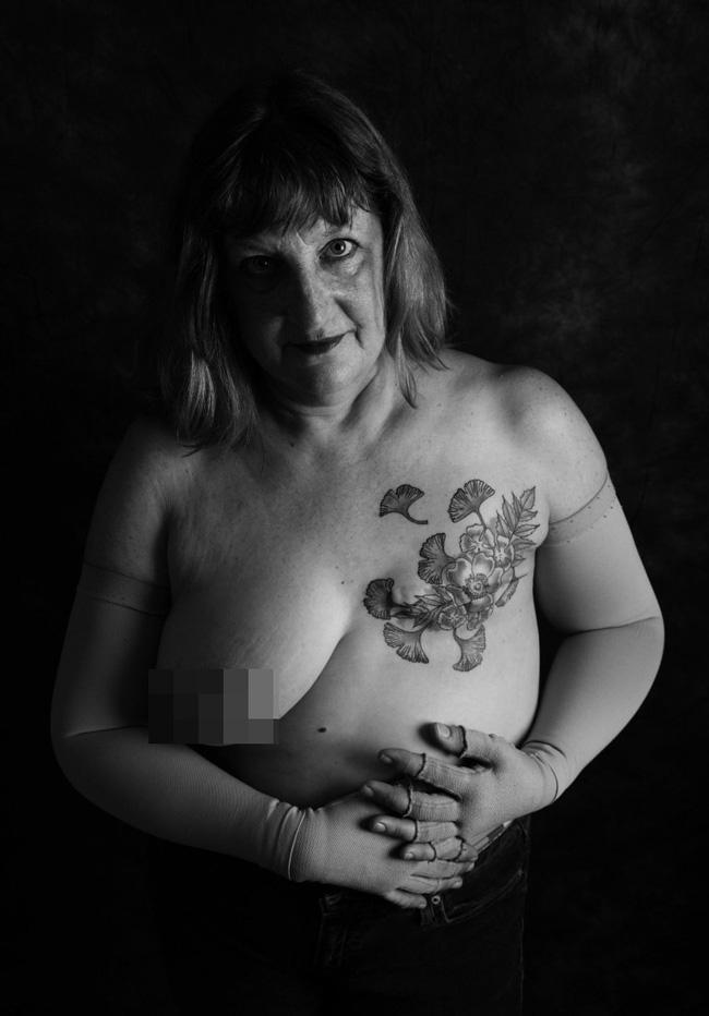 Loạt ảnh đáng kinh ngạc cho thấy sự thật nghiệt ngã khi phải chung sống với ung thư - Ảnh 6.