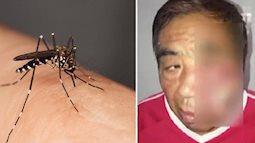 Có ai ngờ, chỉ vì gãi vết muỗi đốt ở vị trí này mà người đàn ông bị nhiễm trùng, hoại tử tận xương, suýt mất mạng