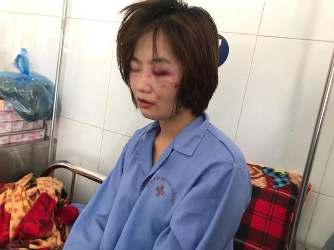 Nữ nhân viên phụ xe buýt bị nhóm đối tượng hành hung ở Hà Nội: