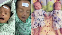 """Hành trình ròng rã nuôi con song sinh bị sinh non nặng có 1.3kg, """"đi viện nhiều như cơm bữa"""" của bà mẹ 9x"""