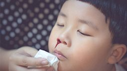 Ai cũng bắt trẻ ngửa đầu ra sau khi chảy máu cam nhưng chuyên gia lại khuyên bố mẹ làm việc khác
