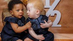 Cặp sinh đôi chào đời cách nhau vài phút nhưng khiến bác sĩ cũng sốc, cả bệnh viện kéo đến chụp ảnh