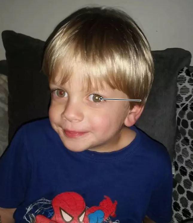 Nhờ dấu hiệu lạ trong tấm ảnh chụp con trai, cha mẹ đau đớn khi biết điều khủng khiếp sắp xảy đến với bé - Ảnh 1.