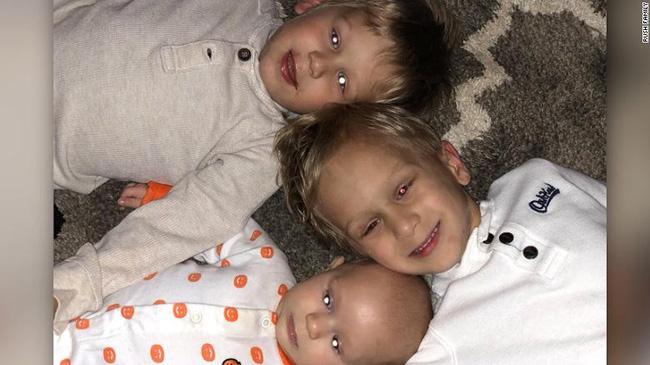 Bức ảnh chụp ba anh em trai cùng có một điểm đặc biệt, không ngờ rằng đó là biểu hiện của một căn bệnh ung thư hiếm gặp - Ảnh 1.