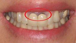 Bỗng dưng thấy răng miệng xuất hiện thứ này, đừng bỏ qua bởi có thể tim, gan, thận của bạn có thể đang gặp nguy hiểm!