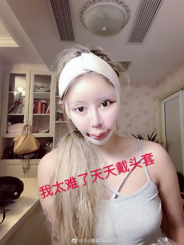 Nghiện phẫu thuật thẩm mỹ từ năm 13 tuổi, thiếu nữ khiến cộng đồng mạng tá hỏa khi công khai những bức ảnh xinh đẹp nhất của mình - Ảnh 3.