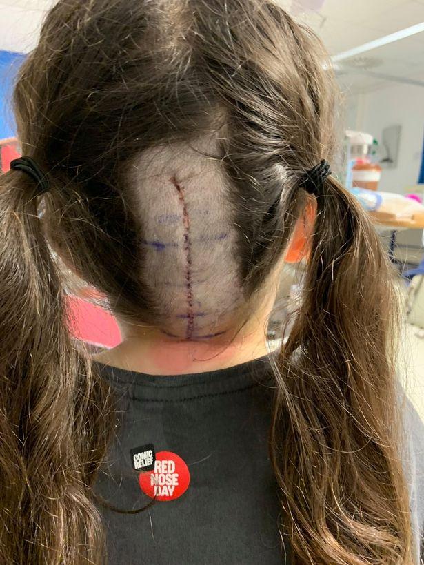 2 năm không đi kiểm tra mắt, bé gái 8 tuổi bất ngờ bị phát hiện có khối u trong não - Ảnh 3.