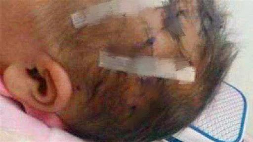 Con sinh mổ bị thương ở đầu, sản phụ và gia đình rất tức giận nhưng không ngờ bác sĩ lại nói rằng điều đó là bình thường - Ảnh 1.