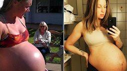 Hình ảnh bụng bầu mang đa thai khiến các mẹ nhìn thôi cũng thấy nặng nề, xót xa