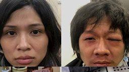 Lời khai kinh hoàng của cặp vợ chồng bạo hành bé gái 3 tuổi tử vong: Cha mẹ nghiện ma túy, dùng chân tay và cán chổi đánh con đến ngất