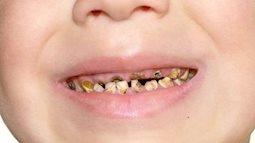 """Đường trong kẹo ngọt """"tàn phá"""" răng trẻ như thế nào?"""