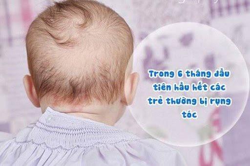 Tại sao trẻ sơ sinh lại bị rụng tóc - Hình ảnh 1