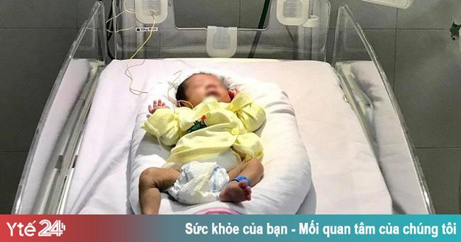 Cứu sống trẻ sơ sinh cực non tháng, mắc bệnh lý hoại tử dạ dày hiếm gặp - Ảnh 1.