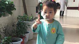 Bé gái 2,5 tuổi bị chó nhà tấn công để lại đầy vết cắn trên mặt