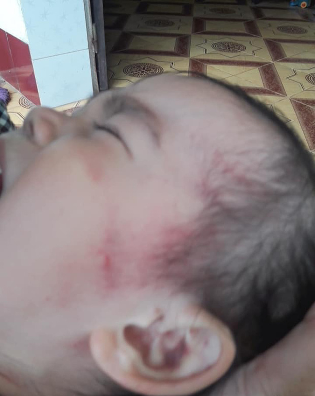 Bắc Giang: Nghi vấn cơ sở mầm non tư thục bạo hành dã man bé gái hơn 2 tuổi khi mới nhập học 3 ngày - Ảnh 5.