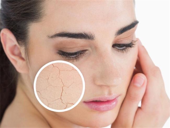 Lưu ý khi dùng quạt khi ngủ trong mùa hè để không bị sổ mũi, khô da, khô mắt, nhức mỏi người... - Ảnh 2.