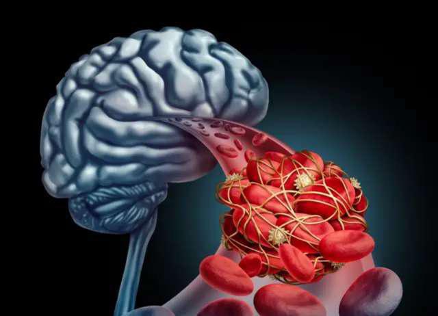 Bệnh nhồi máu não thường đến trong lặng lẽ nhưng nguy hiểm khó lường, bác sĩ khuyên: Buổi tối hãy kiên trì làm 2 việc này và giảm bớt 3 điều để bảo toàn tính mạng - Ảnh 1.