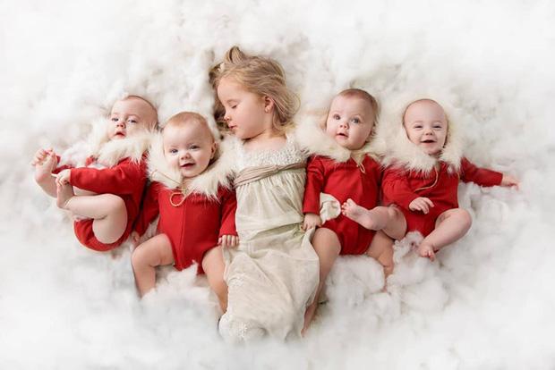4 bé gái trong ca sinh tư giống hệt nhau vô cùng hiếm trên thế giới với tỷ lệ chỉ 1/70 triệu ca sau 3 năm đã có những thay đổi gây ngỡ ngàng - Ảnh 2.