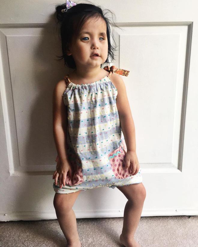 Bé gái có đôi mắt xanh thẳm khiến em khóc trong đau đớn 16 tiếng/ngày sau 1 năm nhận nuôi đã có sự thay đổi ngoạn mục - Ảnh 8.
