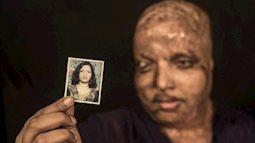 Cô gái trẻ bị tạt axit đến biến dạng khuôn mặt, mù mắt vì từ chối lời cầu hôn, 11 năm sau phép màu kỳ diệu đã xảy ra