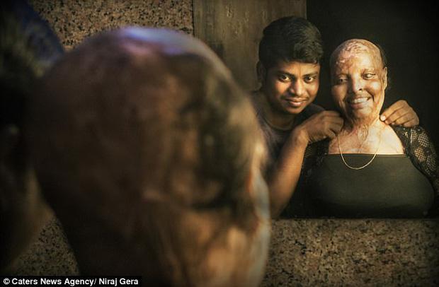Cô gái trẻ bị tạt axit đến biến dạng khuôn mặt, mù mắt vì từ chối lời cầu hôn, 11 năm sau phép màu kỳ diệu đã xảy ra - Ảnh 2.