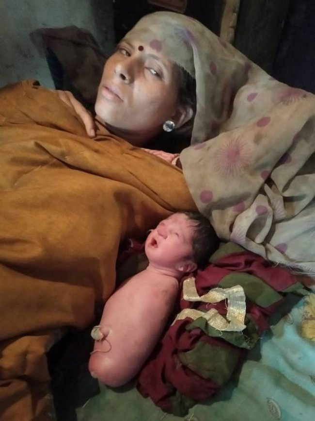 Ca sinh ở Ấn Độ với tỉ lệ dị tật cực kì hiếm khiến đến cả bác sĩ cũng phải ngỡ ngàng - Ảnh 1.