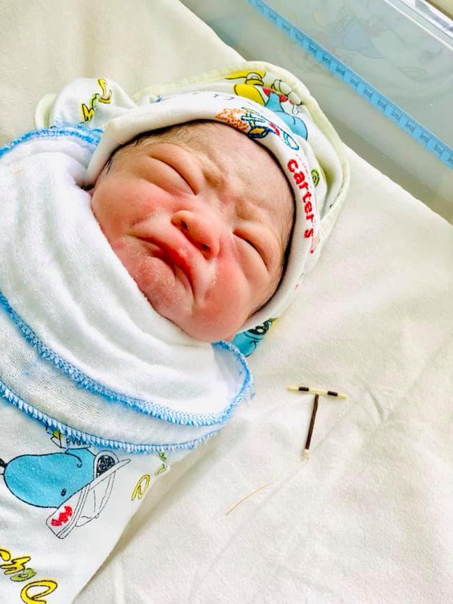Bé sơ sinh chào đời ở một bệnh viện sản ở Hải Phòng gây sốt với chiếc vòng tránh thai trong tay - Ảnh 3.