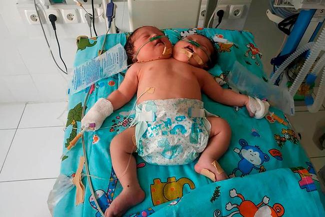 Dù bác sĩ đã khuyên nên chấm dứt thai kỳ nhưng bà mẹ vẫn phải giữ và sinh ra một em bé 2 đầu theo yêu cầu của bố chồng - Ảnh 1.