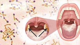 Những điều bạn cần biết về bệnh bạch hầu