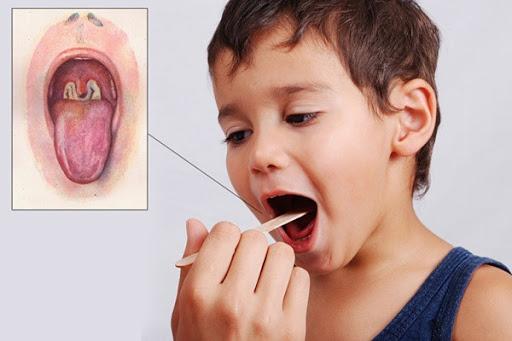 Bệnh bạch hầu tái xuất nguy hiểm: Bác sĩ lưu ý những điều quan trọng - Ảnh 8.