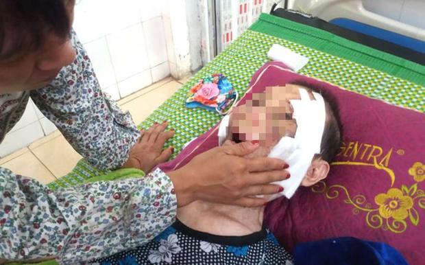 Hải Dương: Đau lòng con trai đánh mẹ già 84 tuổi bại liệt phải nhập viện cấp cứu  - Ảnh 1.