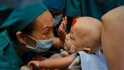 Ý nghĩa đặc biệt của hai dấu chấm màu xanh, đỏ trên trán hai bé song sinh dính liền trong ca đại phẫu thuật