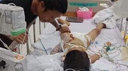 Bé 7 tuổi ngưng tim, hôn mê sau ca mổ lấy đinh nẹp ở tay