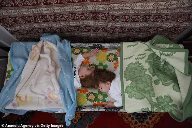 Cuộc chiến giành sự sống của cặp song sinh dính đầu cực hiếm: Gần 2 tuổi vẫn không thấy mặt nhau, trải qua 3 cuộc đại phẫu thuật mới có thể tách rời - Ảnh 2.