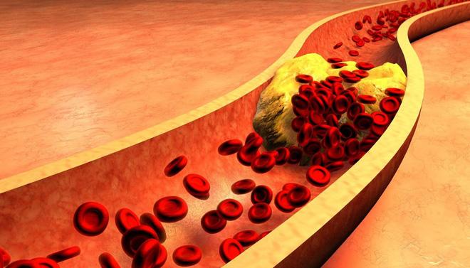 Cách đơn giản để xác định có bị mỡ máu hay không: Đừng bỏ qua mà nguy hiểm tính mạng - Ảnh 3.