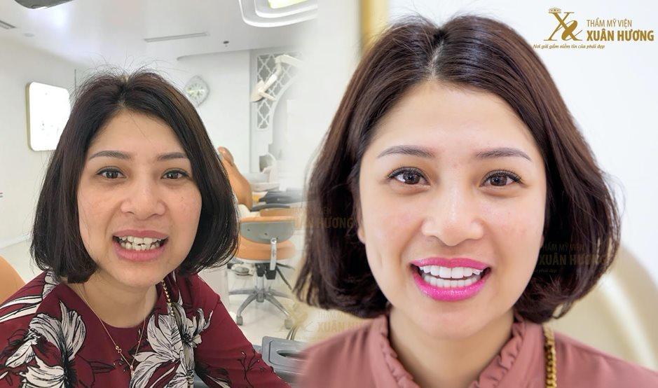 Tự tin cười rạng rỡ nhờ Phủ răng sứ CAD CAM 3D tại TMV Xuân Hương
