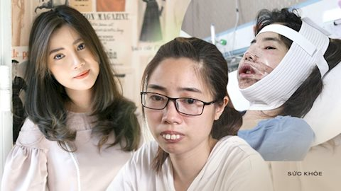 """Tự ti vì ngoại hình giống """"Thị Nở"""", cô gái Phú Thọ quyết tâm thực hiện thẩm mỹ 2 lần, nhan sắc thay đổi ngoạn mục khiến cộng đồng mạng trầm trồ"""