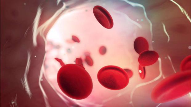 Nhóm máu duy nhất có thể tự động chống lại căn bệnh giết nửa triệu người mỗi năm, và cuối cùng khoa học cũng hiểu lý do tại sao - Ảnh 2.