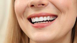 Những căn bệnh từ việc không đánh răng hàng ngày
