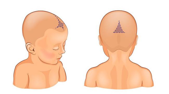 Có những việc tưởng chừng là tốt cho con, nhưng thực ra lại ảnh hưởng đến sức khỏe của con rất nhiều, nhất là việc số 6 - Ảnh 3.