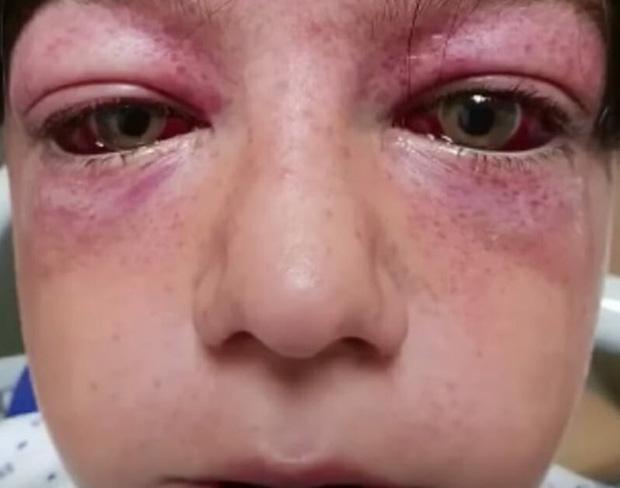 Suýt bị thiêu cháy toàn thân, thắt cổ chết tức tưởi và hàng loạt những bi kịch nhói lòng từ trò nghịch dại trẻ em học theo trên Youtube - Ảnh 5.