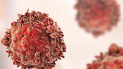 7 dấu hiệu sớm của ung thư máu