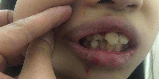 Vụ việc gây tranh cãi: Trẻ nô đùa với bạn bị kéo cổ, ngã sứt răng, cách xử lý sau đó của hai bà mẹ khiến mọi chuyện trở nên ầm ĩ - Ảnh 2.