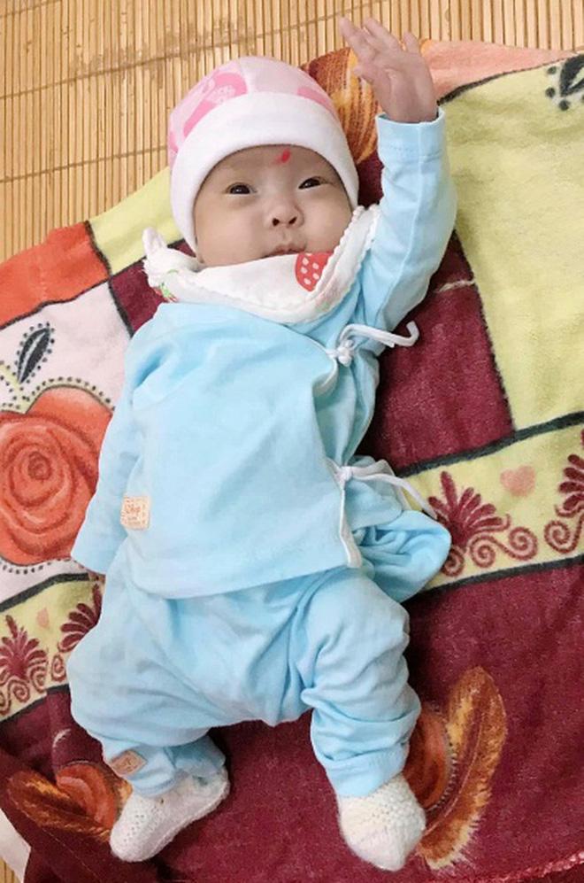 Hành trình kỳ diệu nuôi sống bé sinh non nhẹ cân nhất Việt Nam từ 480 gr lên 2,1 kg - Ảnh 4.