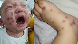 Phát hiện và điều trị thành công một ca bệnh cực hiếm chưa từng xuất hiện ở Việt Nam, cả thế giới chỉ có khoảng 300-500 trường hợp mắc