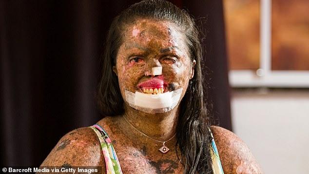 Cô gái có làn da sần sùi như vỏ cây cưới chồng trẻ đẹp - Ảnh 2.