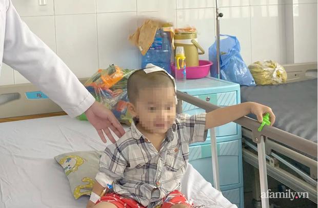 Tai nạn kinh hoàng: Anh lấy xe đạp chở em út quanh xóm rồi bị té, bé trai 2 tuổi lõm sọ não - Ảnh 3.
