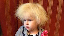 Bé gái người Anh sở hữu mái tóc giống hệt thiên tài Vật lý Einstein do mắc phải hội chứng hiếm gặp