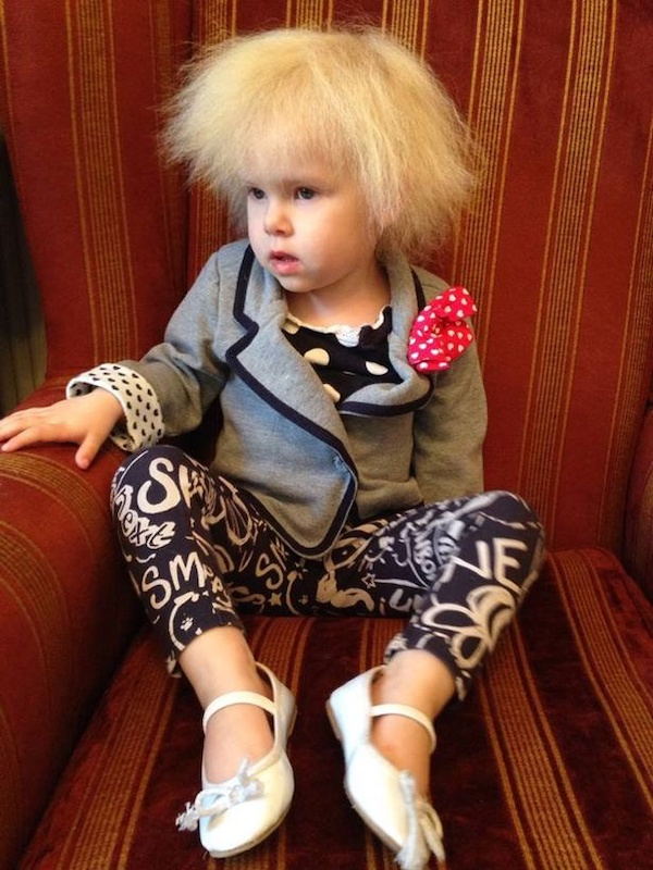 Bé gái người Anh sở hữu mái tóc giống hệt thiên tài Vật lý Einstein do mắc phải hội chứng hiếm gặp - Ảnh 1.