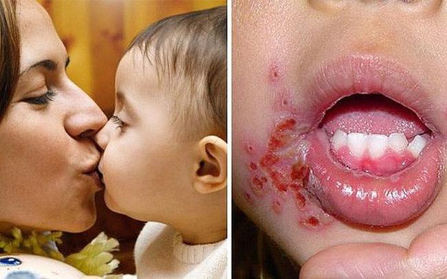 Bé gái 18 tháng tuổi bị nhiễm vi rút sinh dục từ nụ hôn của mẹ, cảnh báo không hôn trẻ khi mắc 9 tình huống này - Ảnh 2.